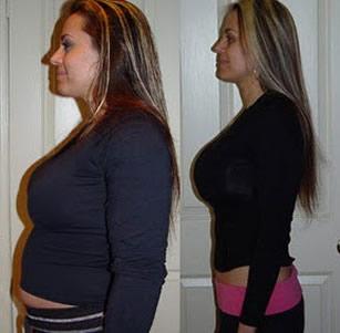 как похудеть при приеме гормональных таблеток отзывы